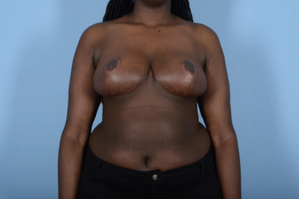 Breast Reduction with Lift Gallery - Patient 24924328 - Image 2