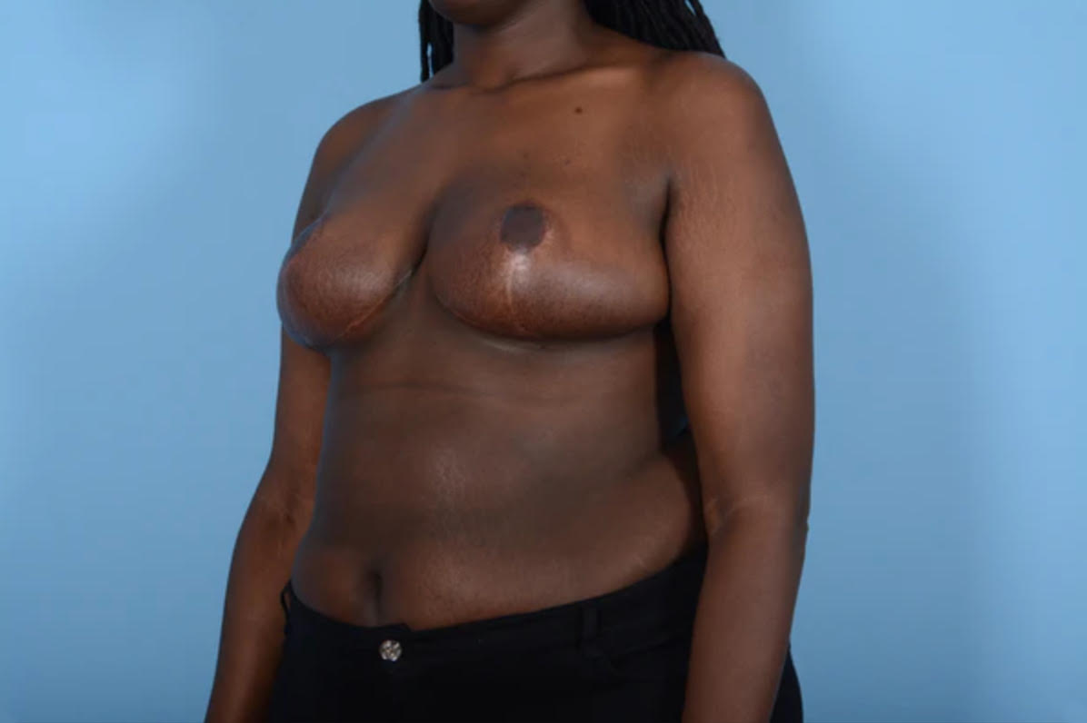 Breast Reduction with Lift Gallery - Patient 24924328 - Image 4