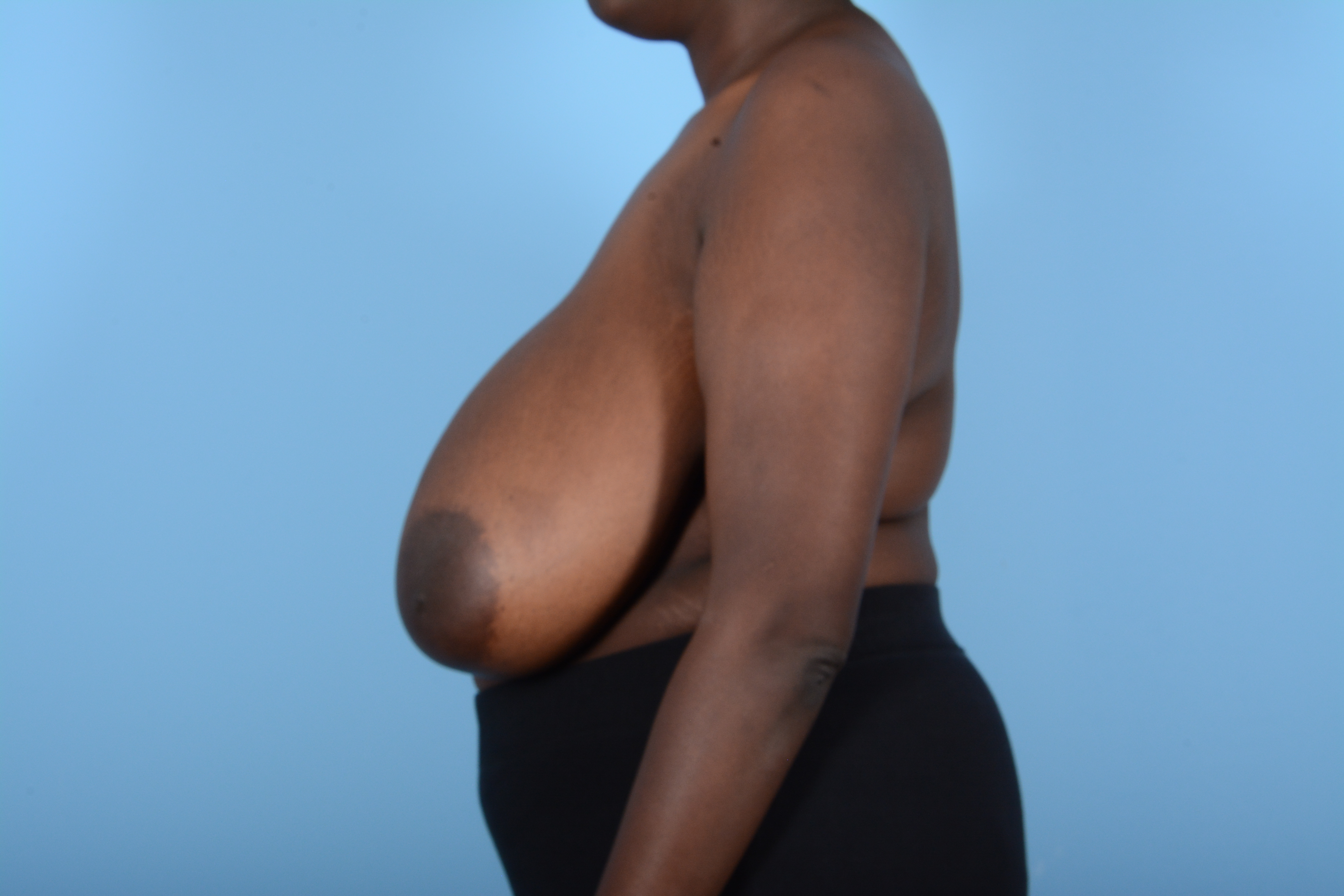 Breast Reduction with Lift Gallery - Patient 24924328 - Image 5