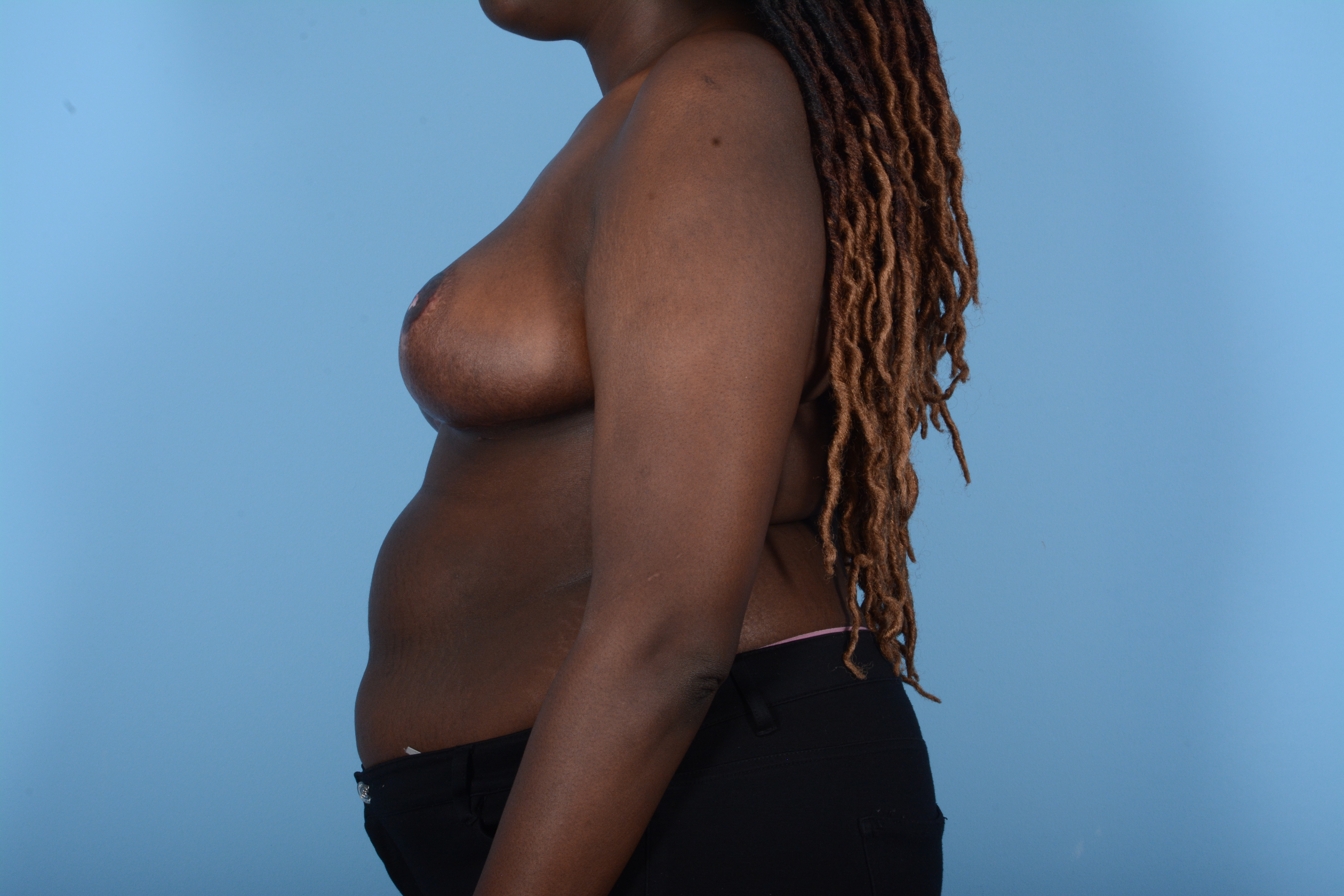 Breast Reduction with Lift Gallery - Patient 24924328 - Image 6