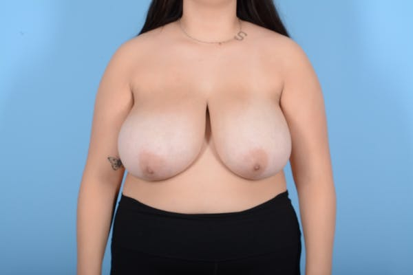 Breast Reduction with Lift Gallery - Patient 24924480 - Image 1