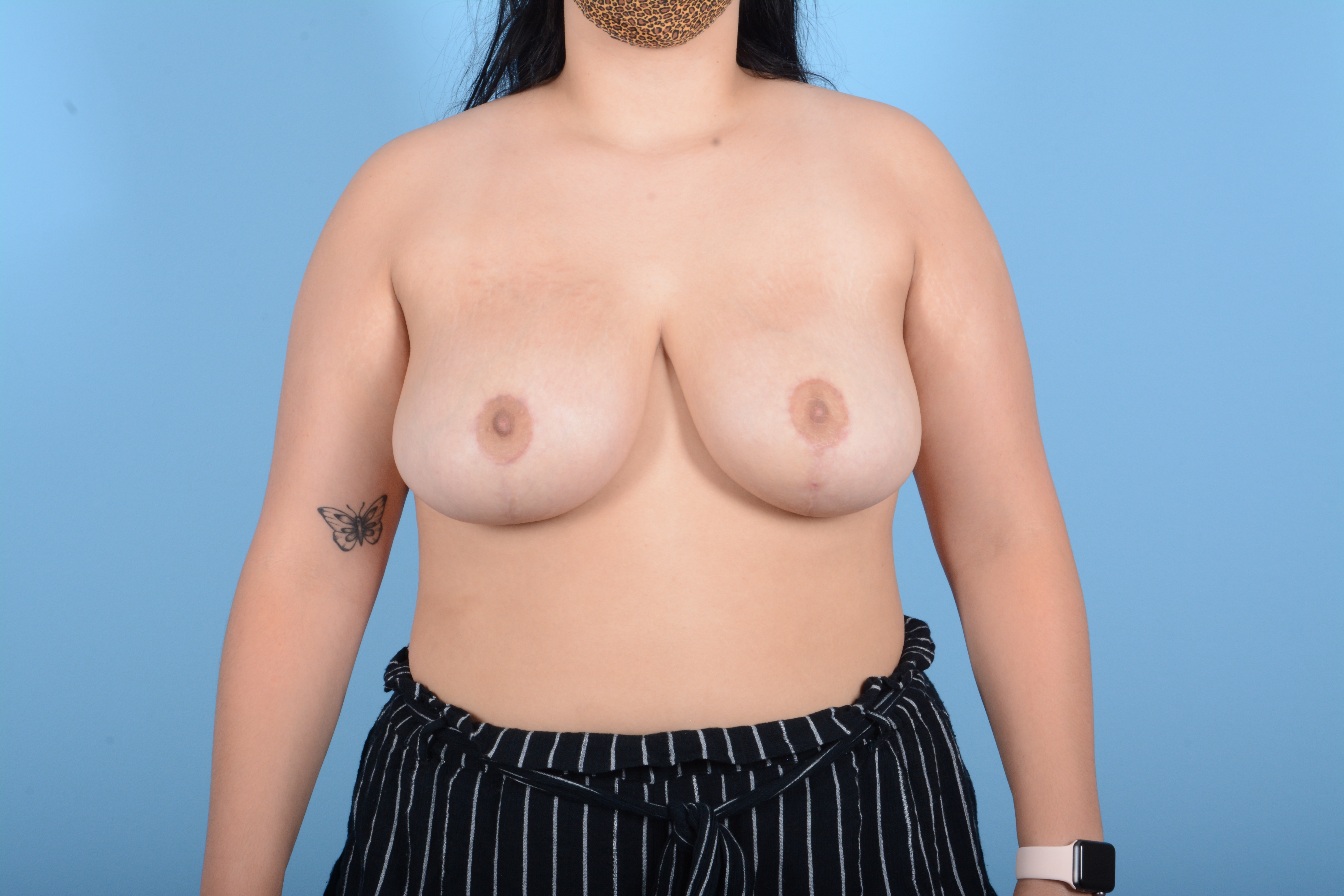Breast Reduction with Lift Gallery - Patient 24924480 - Image 2