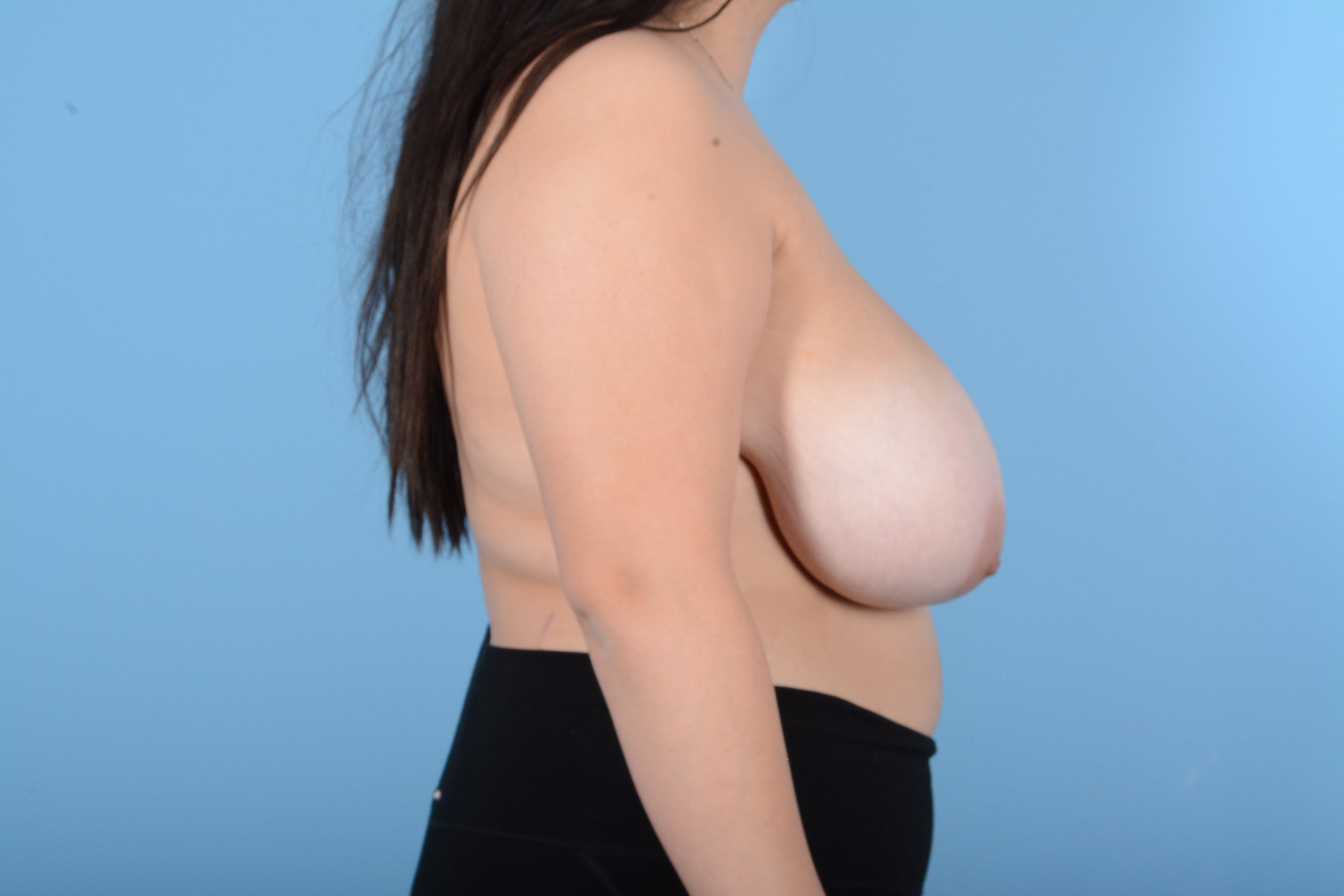 Breast Reduction with Lift Gallery - Patient 24924480 - Image 5