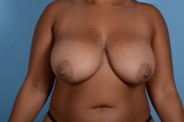Breast Reduction with Lift Gallery - Patient 24925912 - Image 1