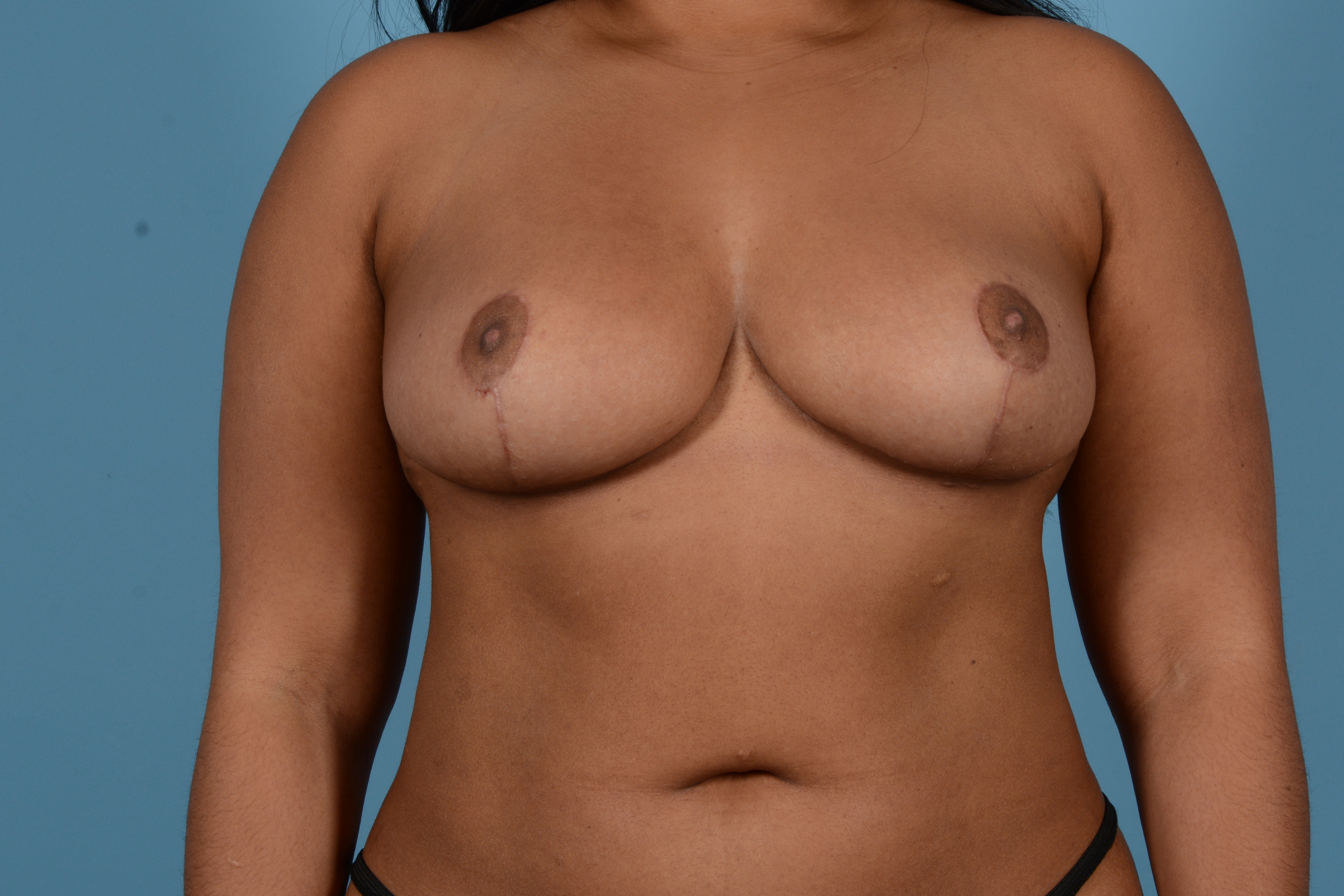 Breast Reduction with Lift Gallery - Patient 24925912 - Image 2