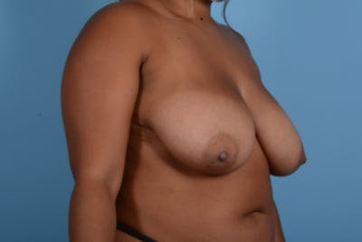 Breast Reduction with Lift Gallery - Patient 24925912 - Image 3