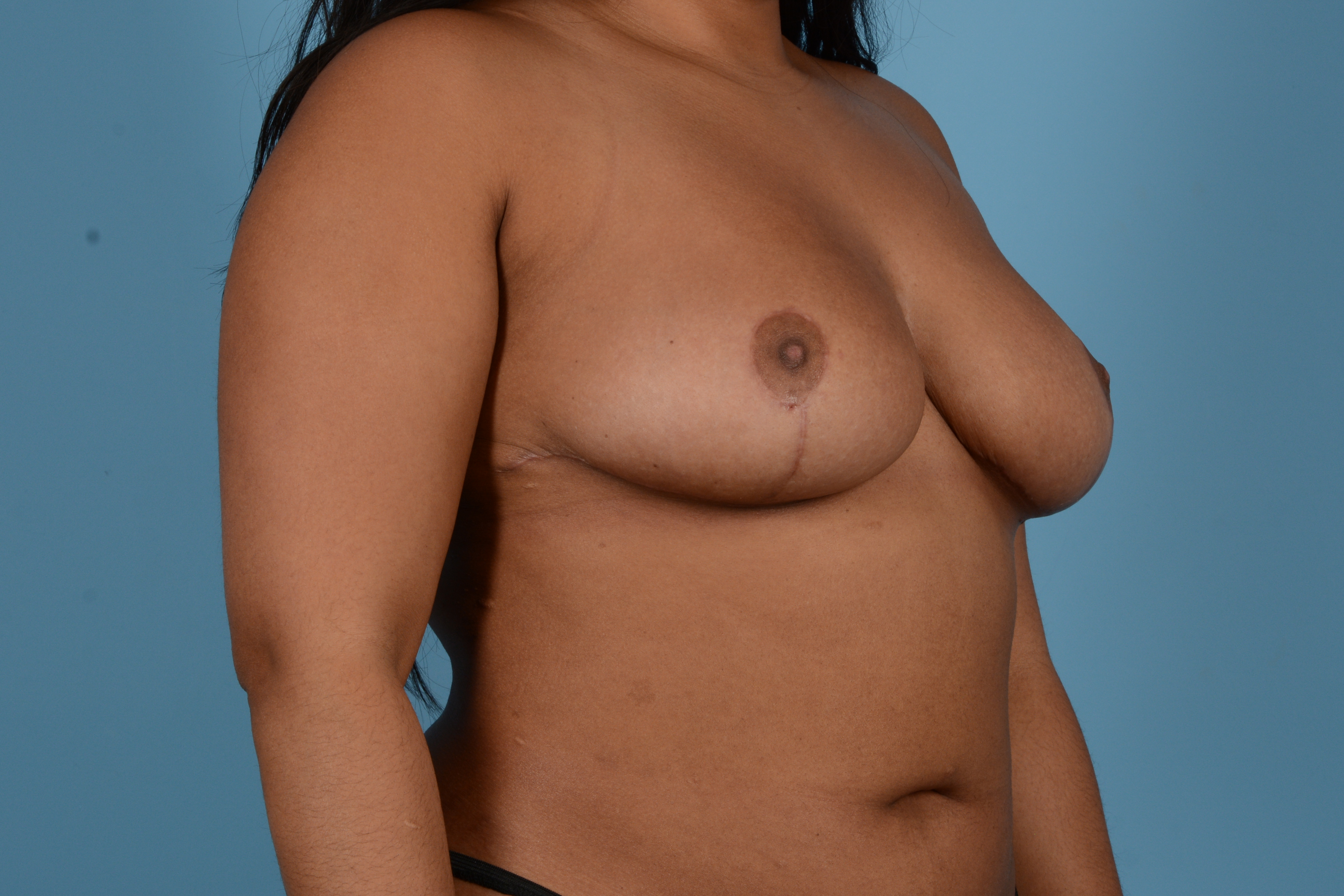 Breast Reduction with Lift Gallery - Patient 24925912 - Image 4