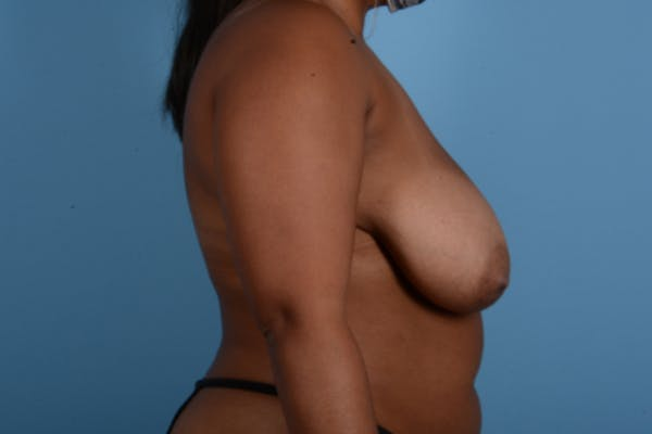 Breast Reduction with Lift Gallery - Patient 24925912 - Image 5