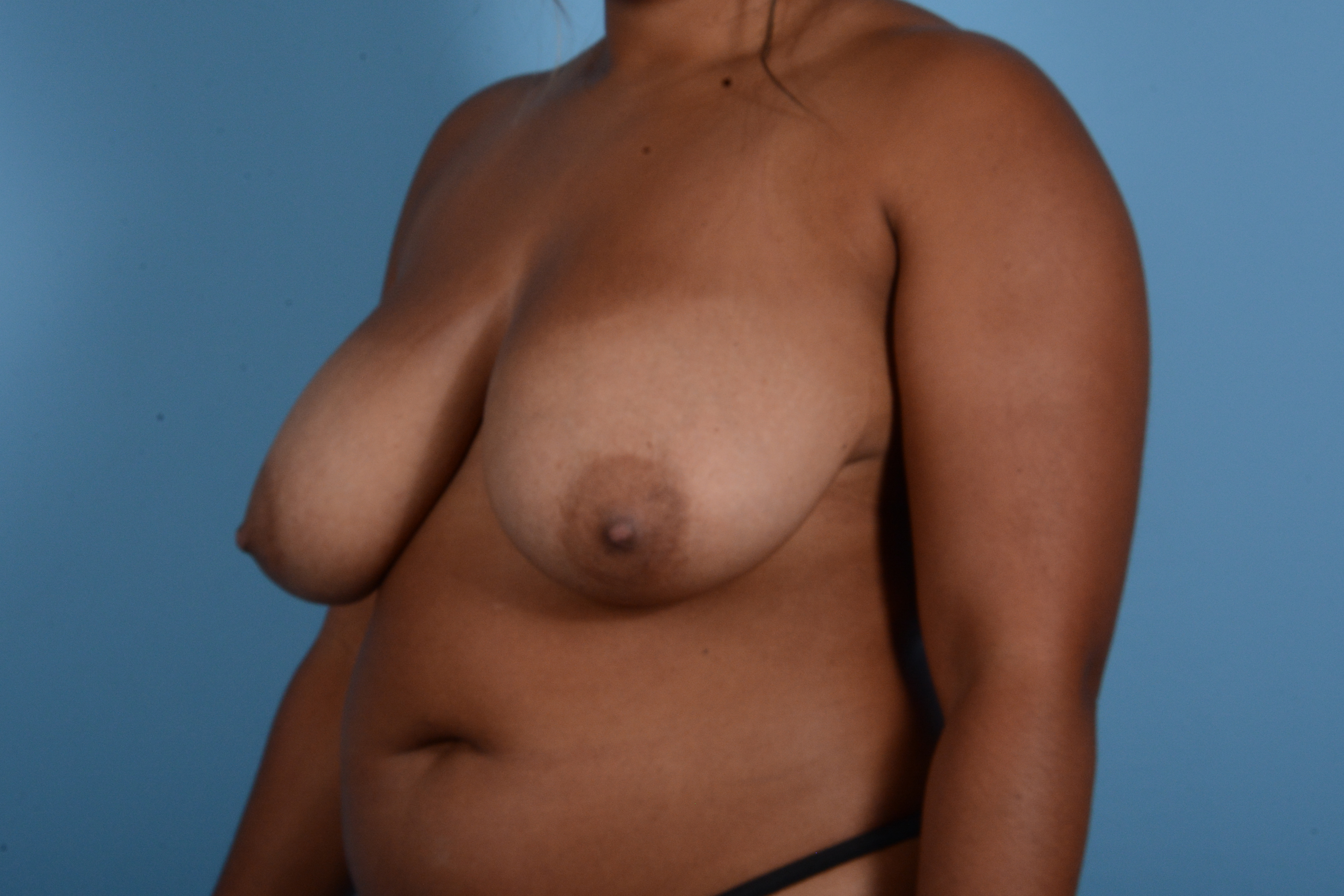 Breast Reduction with Lift Gallery - Patient 24925912 - Image 7