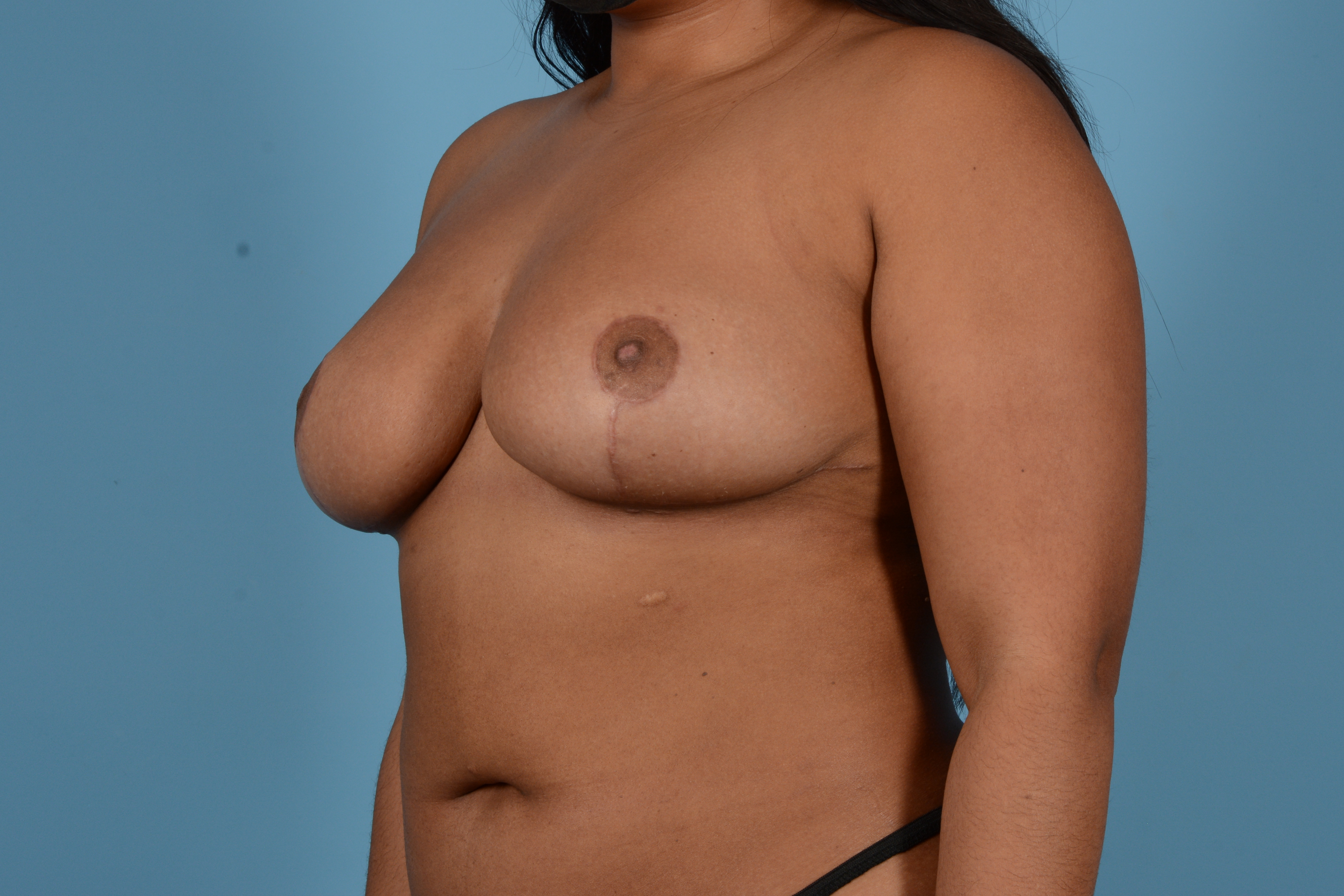 Breast Reduction with Lift Gallery - Patient 24925912 - Image 8