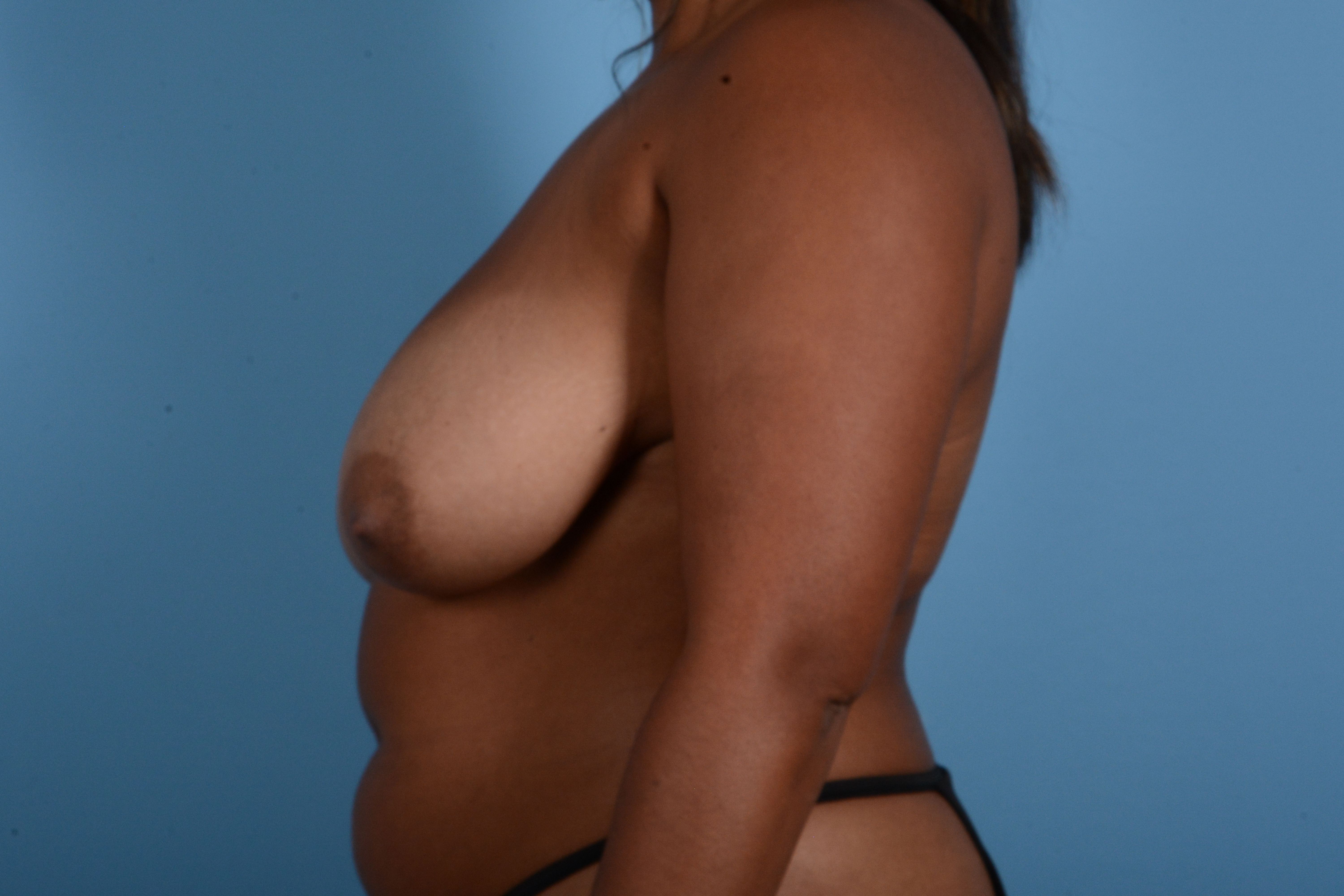 Breast Reduction with Lift Gallery - Patient 24925912 - Image 9