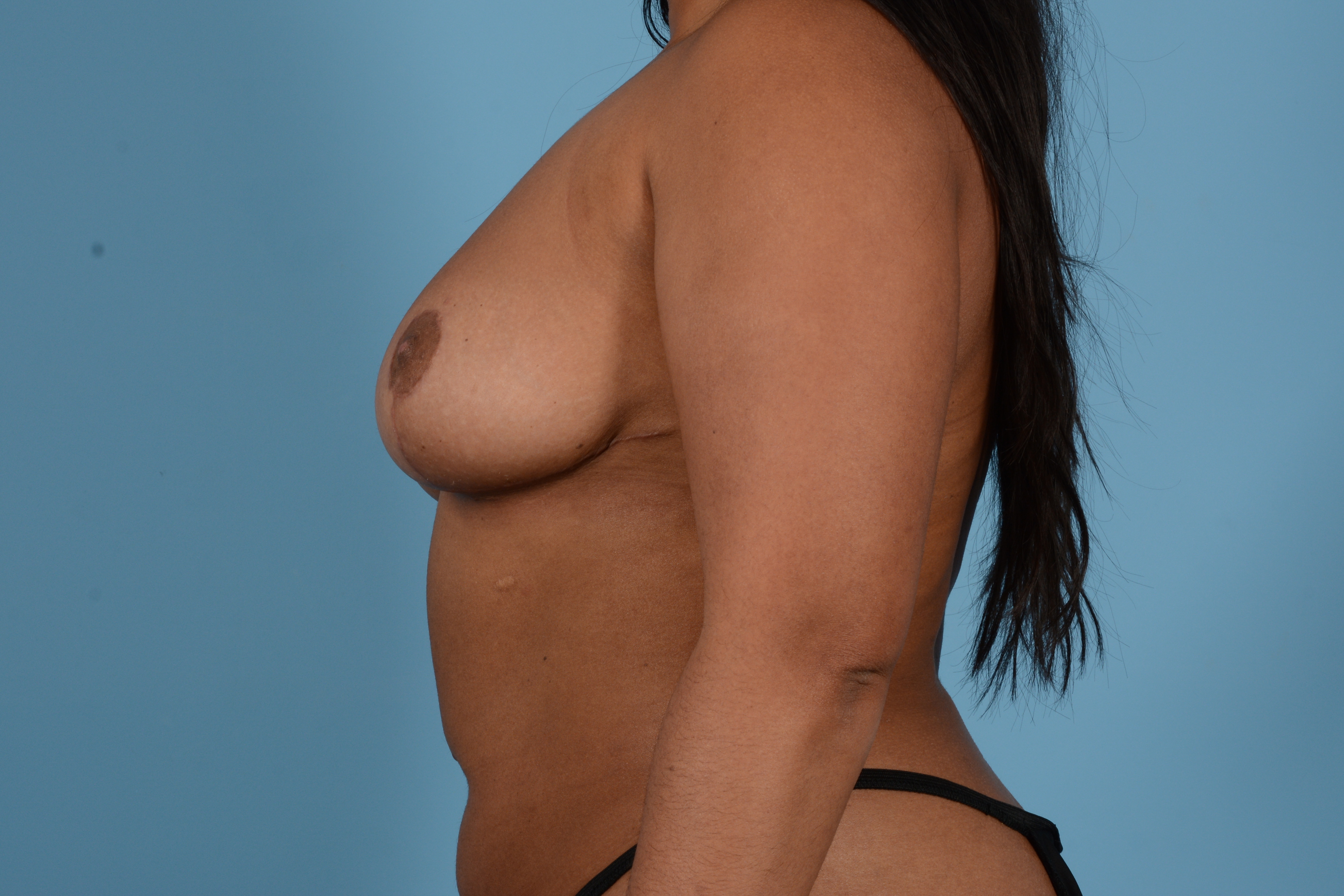 Breast Reduction with Lift Gallery - Patient 24925912 - Image 10