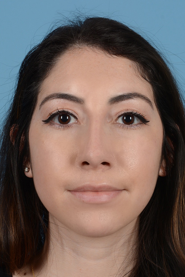 Rhinoplasty Gallery - Patient 31223238 - Image 2