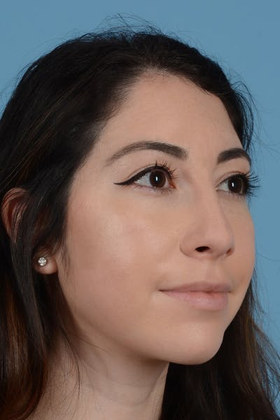 Rhinoplasty Gallery - Patient 31223238 - Image 4