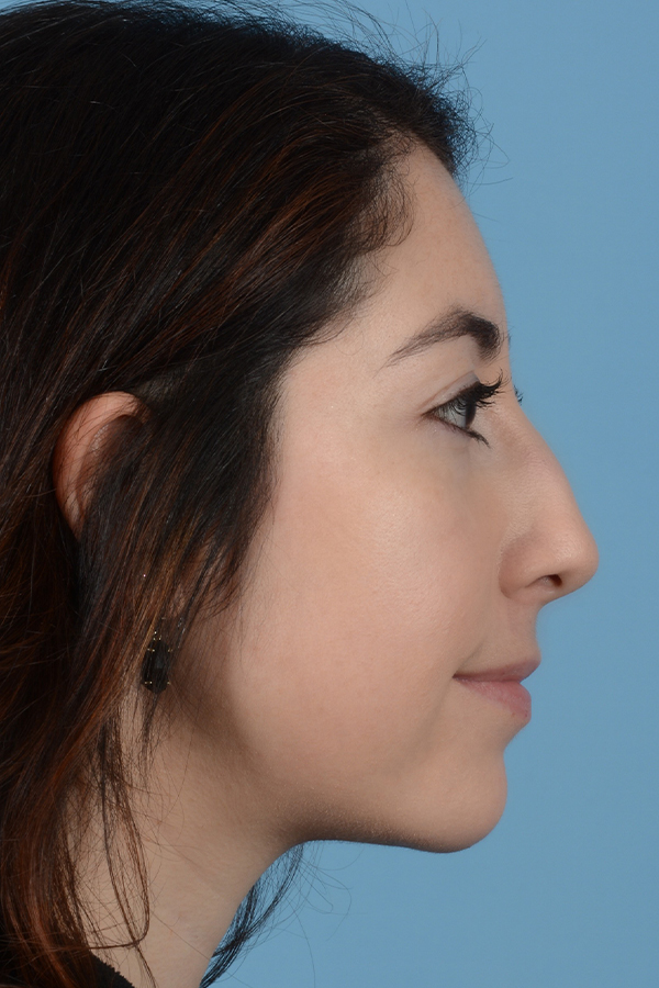 Rhinoplasty Gallery - Patient 31223238 - Image 5