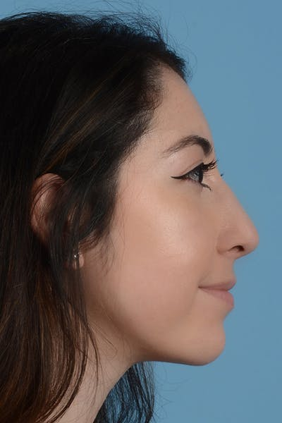 Rhinoplasty Gallery - Patient 31223238 - Image 6
