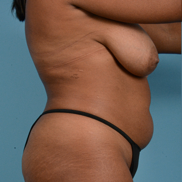 Liposuction Gallery - Patient 23934262 - Image 9