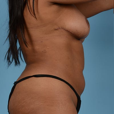 Liposuction Gallery - Patient 23934262 - Image 10