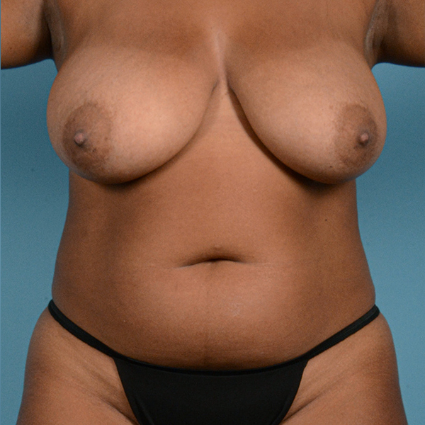 Liposuction Gallery - Patient 23934262 - Image 1