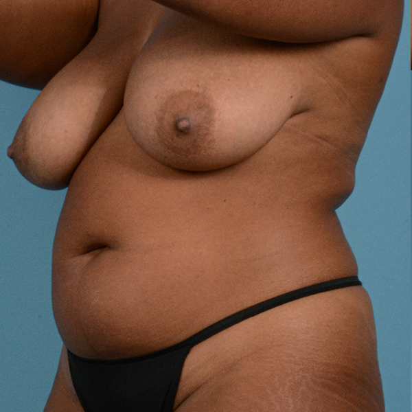Liposuction Gallery - Patient 23934262 - Image 3