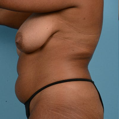 Liposuction Gallery - Patient 23934262 - Image 5