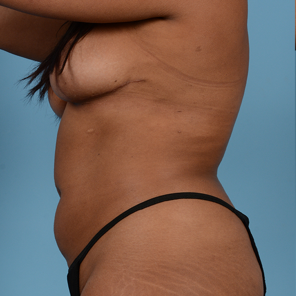 Liposuction Gallery - Patient 23934262 - Image 6