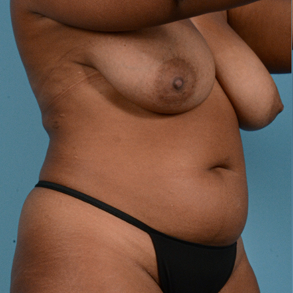 Liposuction Gallery - Patient 23934262 - Image 7