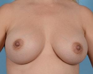 Breast Augmentation in Houston