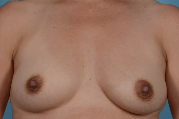 Breast Augmentation Gallery - Patient 31926713 - Image 1