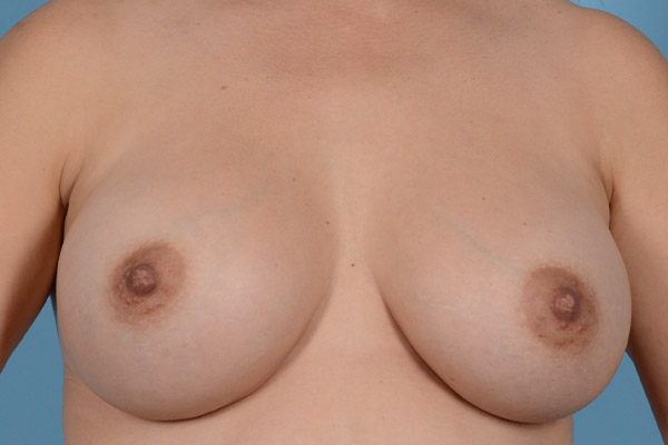 Breast Augmentation Gallery - Patient 31926713 - Image 2