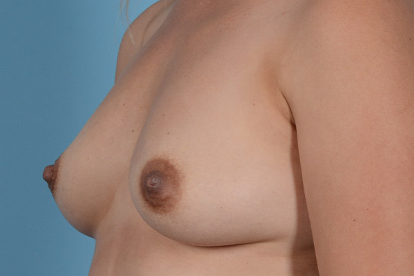 Breast Augmentation Gallery - Patient 31926713 - Image 3