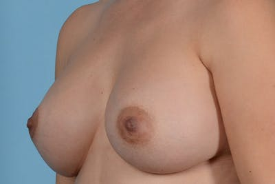 Breast Augmentation Gallery - Patient 31926713 - Image 4