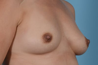 Breast Augmentation Gallery - Patient 31926713 - Image 5