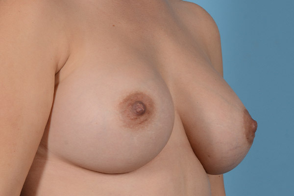 Breast Augmentation Gallery - Patient 31926713 - Image 6