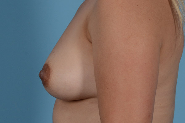 Breast Augmentation Gallery - Patient 31926713 - Image 7