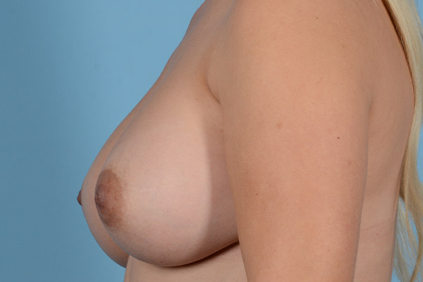 Breast Augmentation Gallery - Patient 31926713 - Image 8