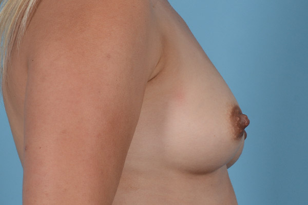 Breast Augmentation Gallery - Patient 31926713 - Image 9