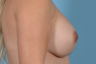 Breast Augmentation Gallery - Patient 31926713 - Image 10