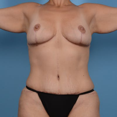 Tummy Tuck Gallery - Patient 37534948 - Image 2