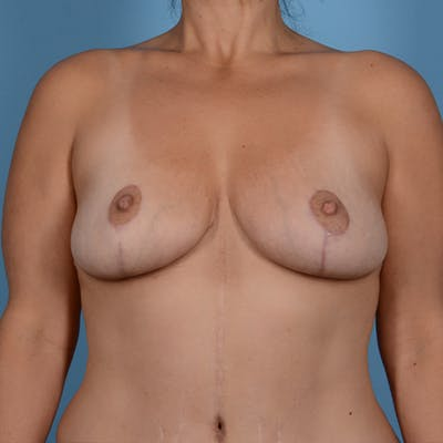 Breast Lift Gallery - Patient 37534964 - Image 2