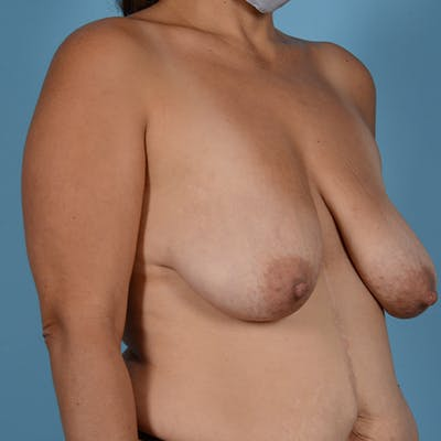 Breast Lift Gallery - Patient 37534964 - Image 3