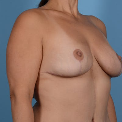 Breast Lift Gallery - Patient 37534964 - Image 4