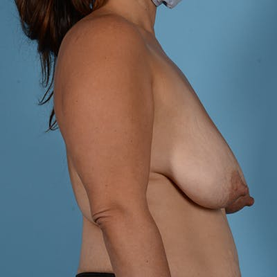 Breast Lift Gallery - Patient 37534964 - Image 5