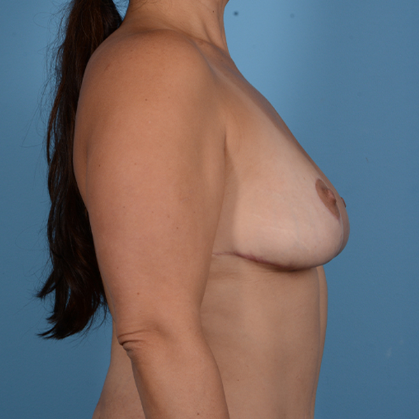 Breast Lift Gallery - Patient 37534964 - Image 6