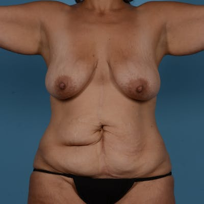 Mommy Makeover Gallery - Patient 37534973 - Image 1