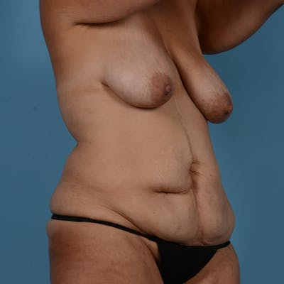 Mommy Makeover Gallery - Patient 37534973 - Image 3