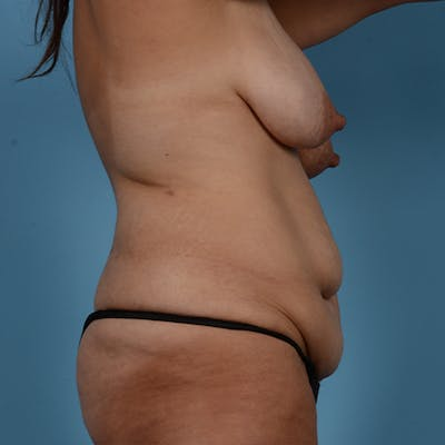Mommy Makeover Gallery - Patient 37534973 - Image 5