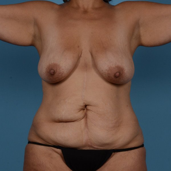 Mommy Makeover Gallery - Patient 37534979 - Image 1