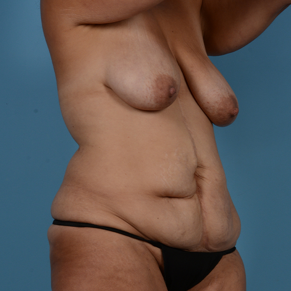 Mommy Makeover Gallery - Patient 37534979 - Image 3