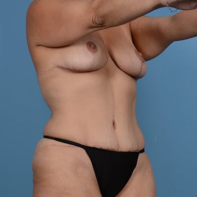 Mommy Makeover Gallery - Patient 37534979 - Image 4